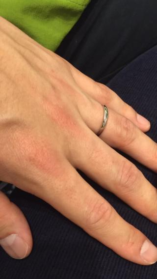 【AMOUR AMULET(アムール・アミュレット)の口コミ】 指が太く短めで、ゴワゴワした指の私ですが、付け心地がとても良く、心配し…