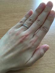 【4℃(ヨンドシー)の口コミ】 婚約指輪を買っていなかったため、ダイヤの入った指輪で、仕事をしていて…