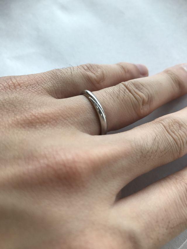 指輪をはめてから、8か月目の状態です。