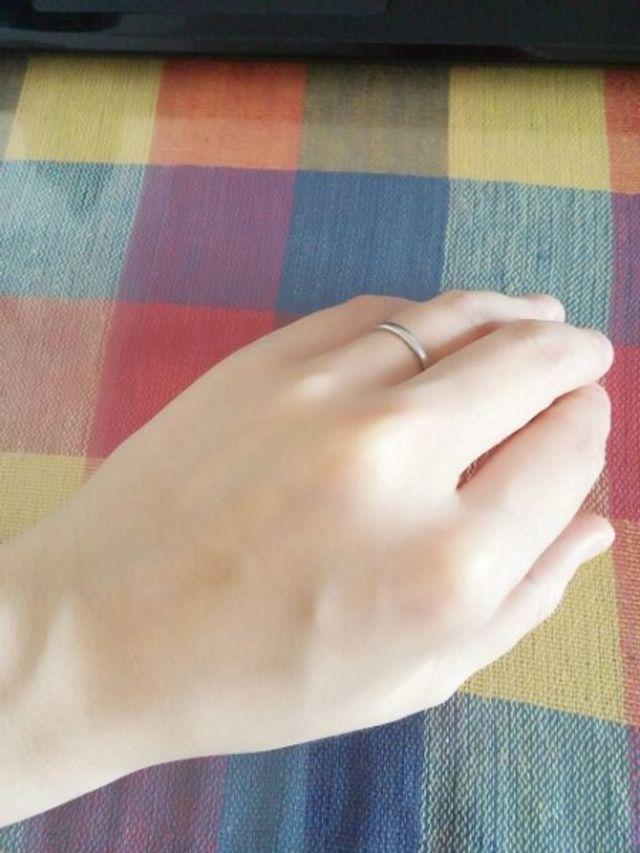 手の甲側から見た感じです。少し指がむくんでいます…。